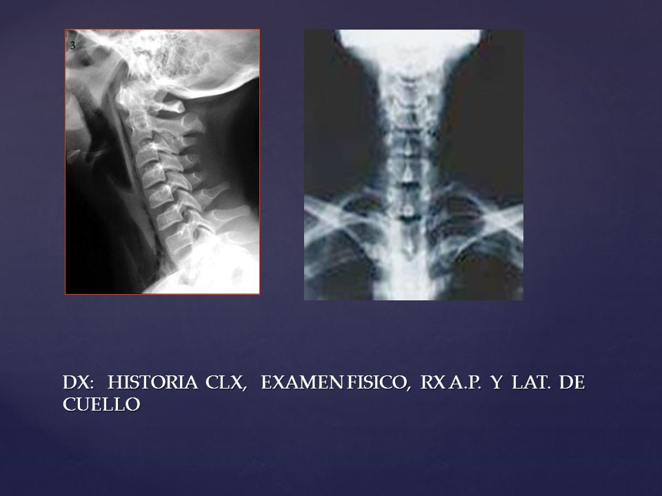 DX: HISTORIA CLX, EXAMEN FISICO, RX A.P. Y LAT. DE CUELLO