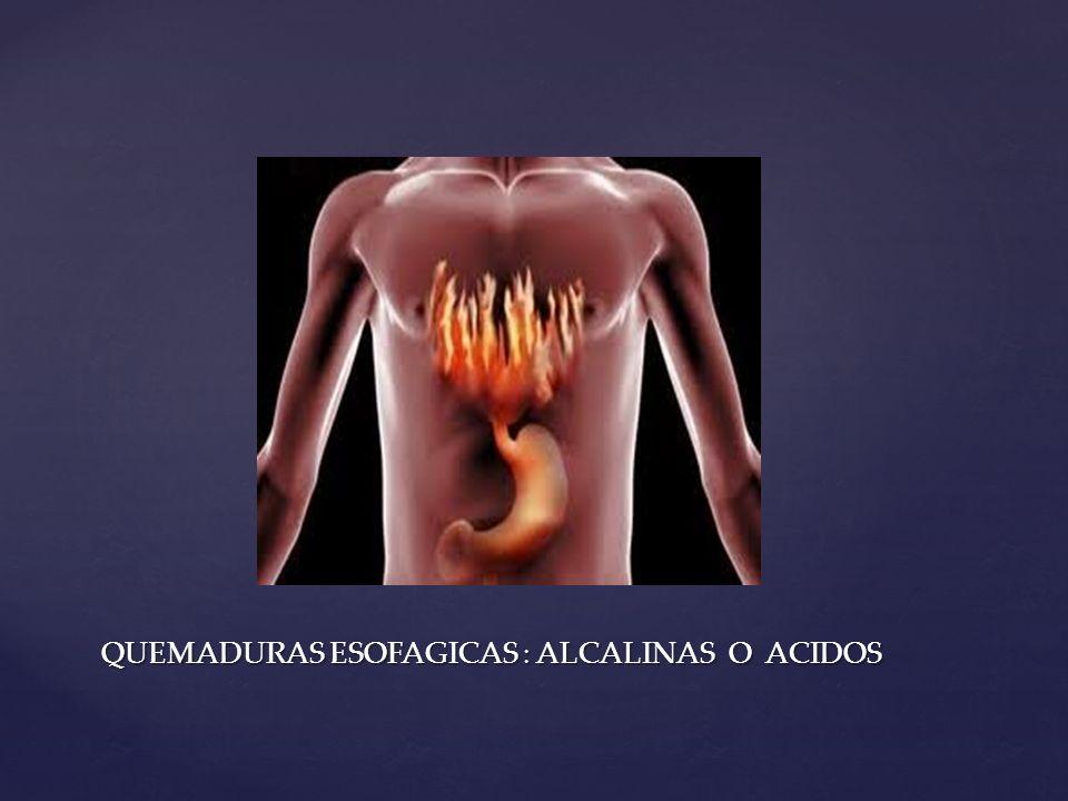 QUEMADURAS ESOFAGICAS : ALCALINAS O ACIDOS
