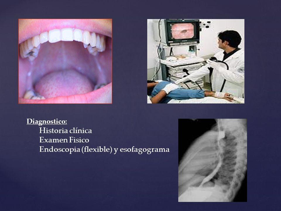 Diagnostico: Historia clínica Examen Fisico Endoscopia (flexible) y esofagograma