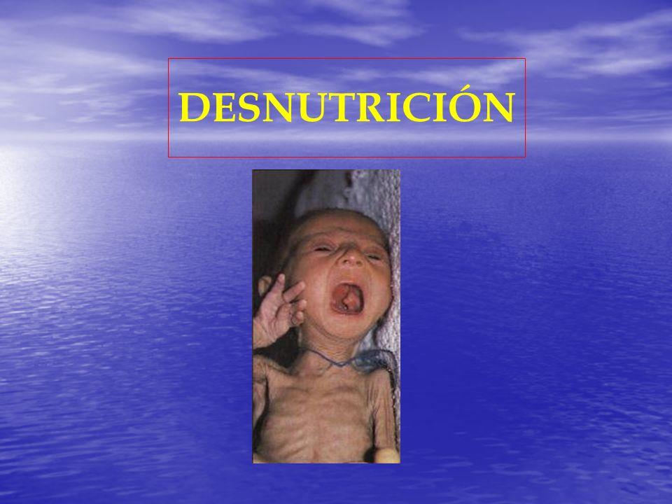 DPE severa CaracterísticasMarasmoKwashiorkor Mayor Frecuencia< 1 año> 1 año Proteínas plasmáticasNormalesDisminuidas Mucosa intestinalLesiones mínimas Aplanamiento de vellosidades AnemiaAusentePresente Alteraciones inmunitarias MínimasImportantes
