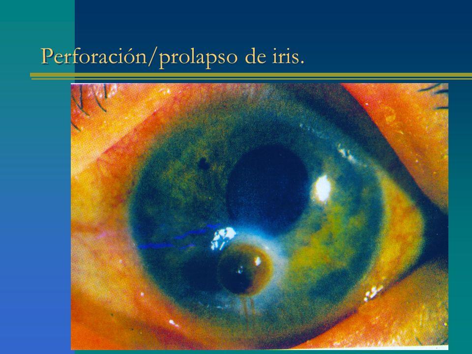 Perforación/prolapso de iris.