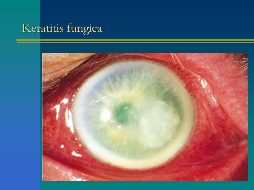 Keratitis fungica