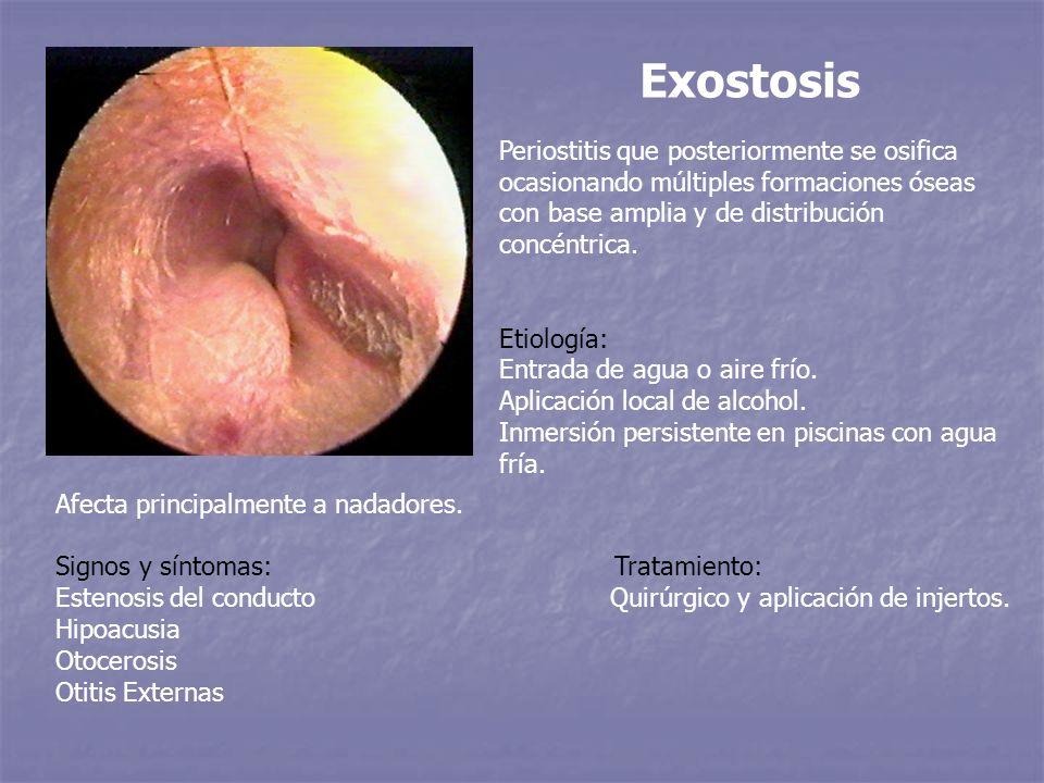 Exostosis Periostitis que posteriormente se osifica ocasionando múltiples formaciones óseas con base amplia y de distribución concéntrica. Etiología: