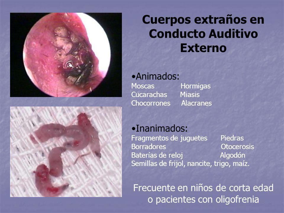 Cuerpos extraños en Conducto Auditivo Externo Animados: Moscas Hormigas Cucarachas Miasis Chocorrones Alacranes Inanimados: Fragmentos de juguetes Pie