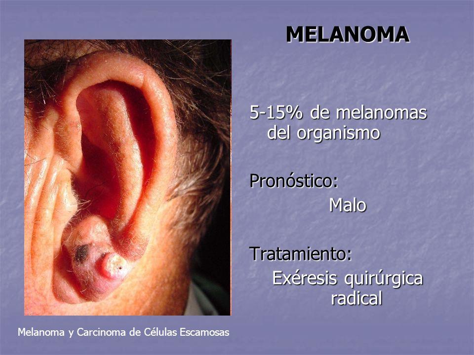 MELANOMA 5-15% de melanomas del organismo Pronóstico:MaloTratamiento: Exéresis quirúrgica radical Melanoma y Carcinoma de Células Escamosas