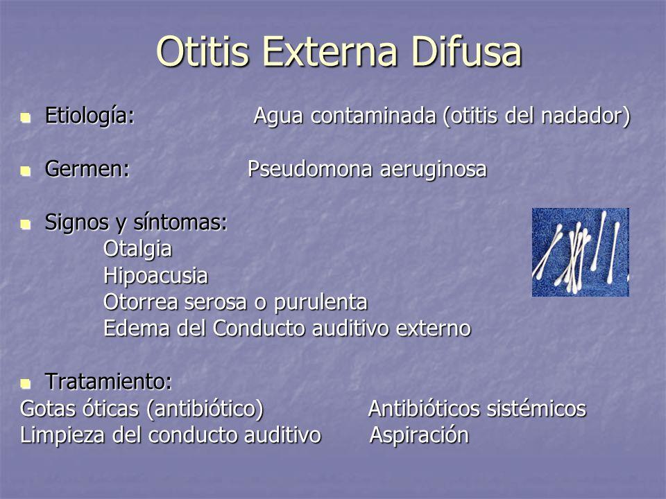 Otitis Externa Difusa Etiología: Agua contaminada (otitis del nadador) Etiología: Agua contaminada (otitis del nadador) Germen: Pseudomona aeruginosa