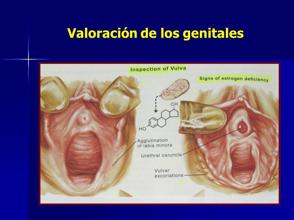 Valoración de los genitales