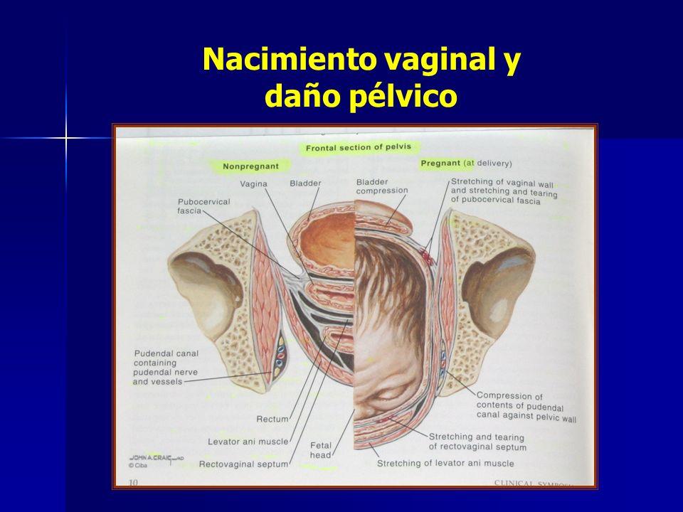 Nacimiento vaginal y daño pélvico