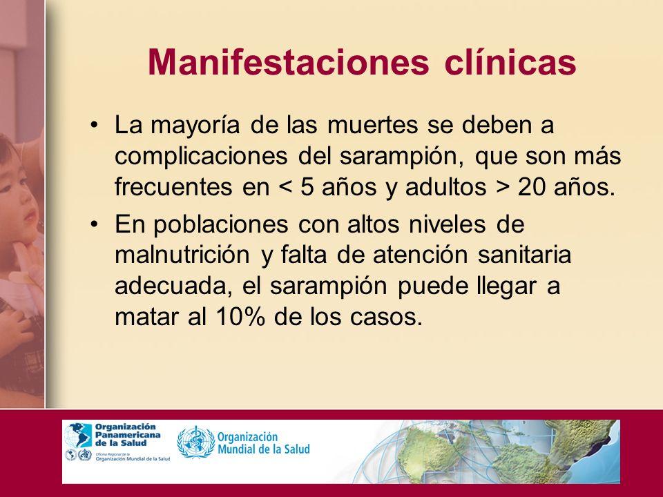 Manifestaciones clínicas La mayoría de las muertes se deben a complicaciones del sarampión, que son más frecuentes en 20 años. En poblaciones con alto