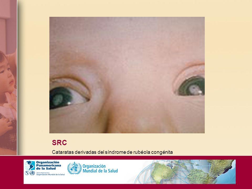 SRC Cataratas derivadas del síndrome de rubéola congénita