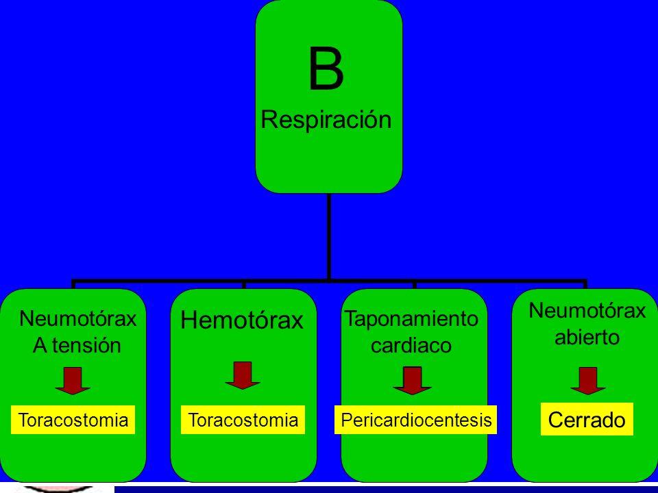 B Respiración Neumotórax A tensión Toracostomia Hemotórax Toracostomia Taponamiento cardiaco Pericardiocentesis Neumotórax abierto Cerrado