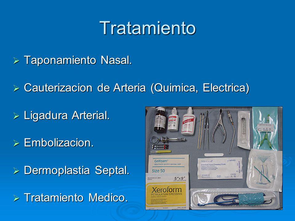 Tratamiento Taponamiento Nasal.Taponamiento Nasal.
