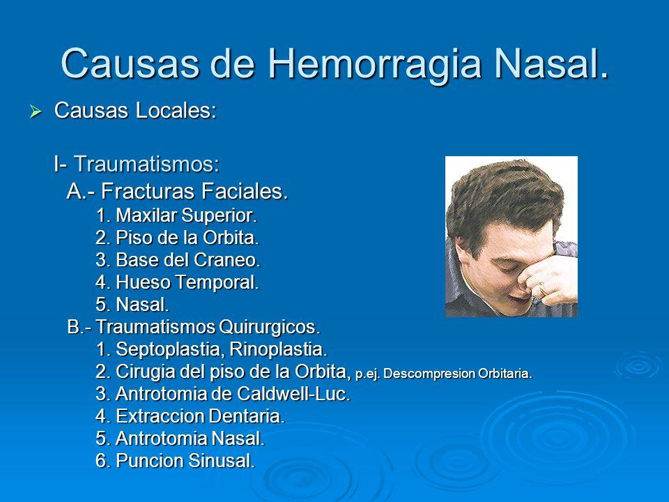 Causas de Hemorragia Nasal.