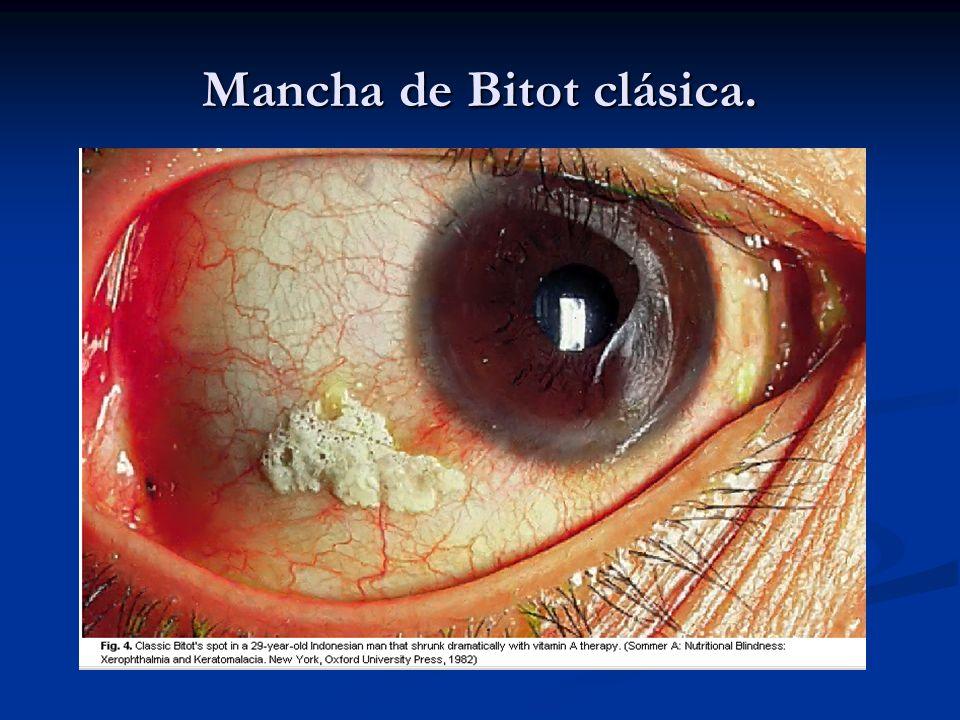 Diapositiva 2: La cornea, la estructura transparente central del ojo, puede manifestar xerosis, ulceras o queratomalacia, un reblandecimiento necrosante y licuefactivo.