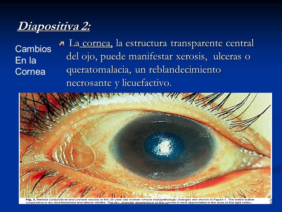 Diapositiva 2: La cornea, la estructura transparente central del ojo, puede manifestar xerosis, ulceras o queratomalacia, un reblandecimiento necrosan