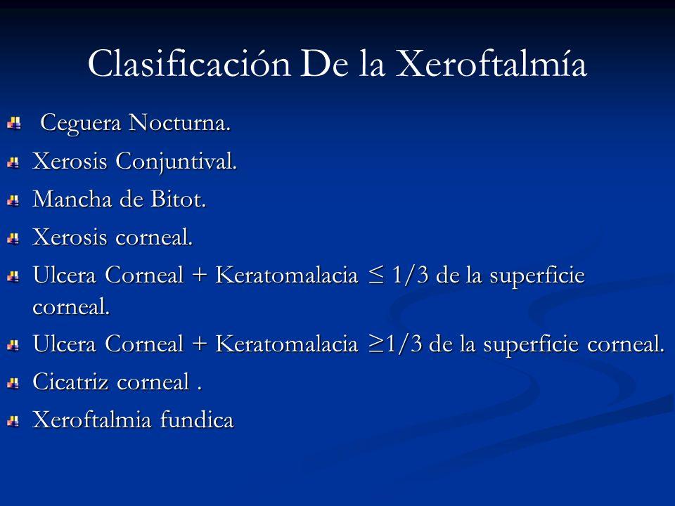 Clasificación De la Xeroftalmía Ceguera Nocturna. Ceguera Nocturna. Xerosis Conjuntival. Mancha de Bitot. Xerosis corneal. Ulcera Corneal + Keratomala