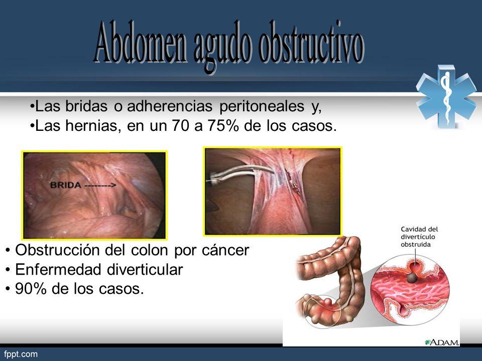 Las bridas o adherencias peritoneales y, Las hernias, en un 70 a 75% de los casos. Obstrucción del colon por cáncer Enfermedad diverticular 90% de los