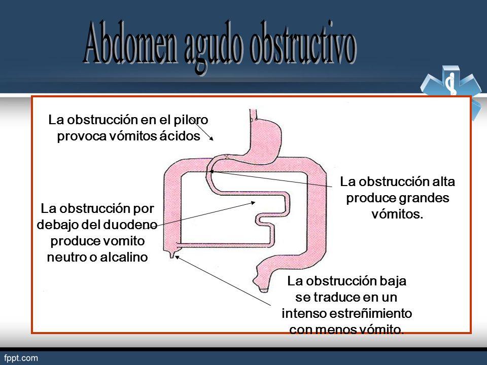 La obstrucción en el piloro provoca vómitos ácidos La obstrucción por debajo del duodeno produce vomito neutro o alcalino La obstrucción alta produce