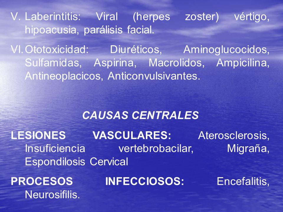 V.Laberintitis: Viral (herpes zoster) vértigo, hipoacusia, parálisis facial. VI.Ototoxicidad: Diuréticos, Aminoglucocidos, Sulfamidas, Aspirina, Macro