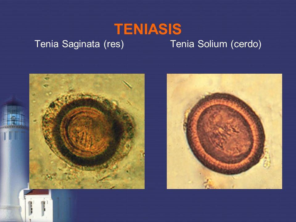 TENIASIS Tenia Saginata (res) Tenia Solium (cerdo)