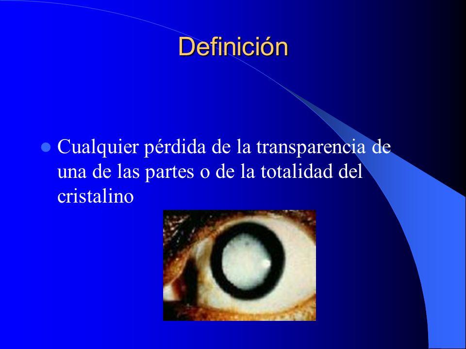 Definición Cualquier pérdida de la transparencia de una de las partes o de la totalidad del cristalino