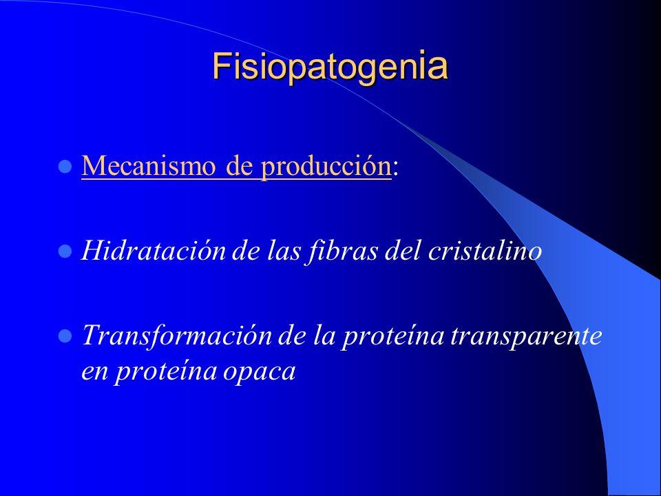 Fisiopatogen ia Mecanismo de producción: Hidratación de las fibras del cristalino Transformación de la proteína transparente en proteína opaca
