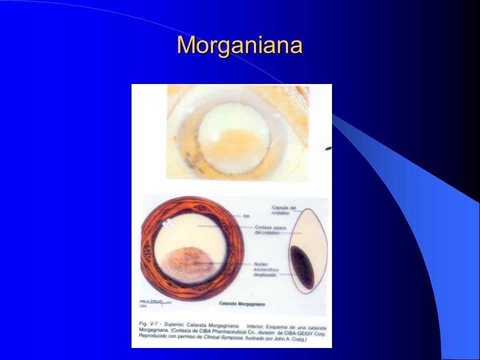 Morganiana