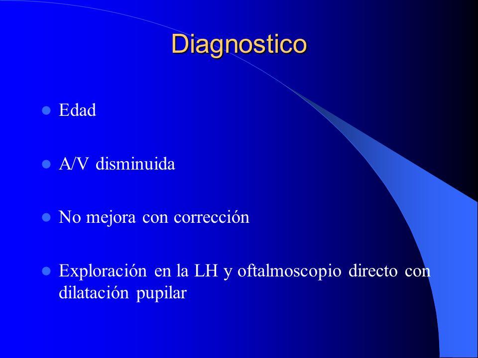 Diagnostico Edad A/V disminuida No mejora con corrección Exploración en la LH y oftalmoscopio directo con dilatación pupilar