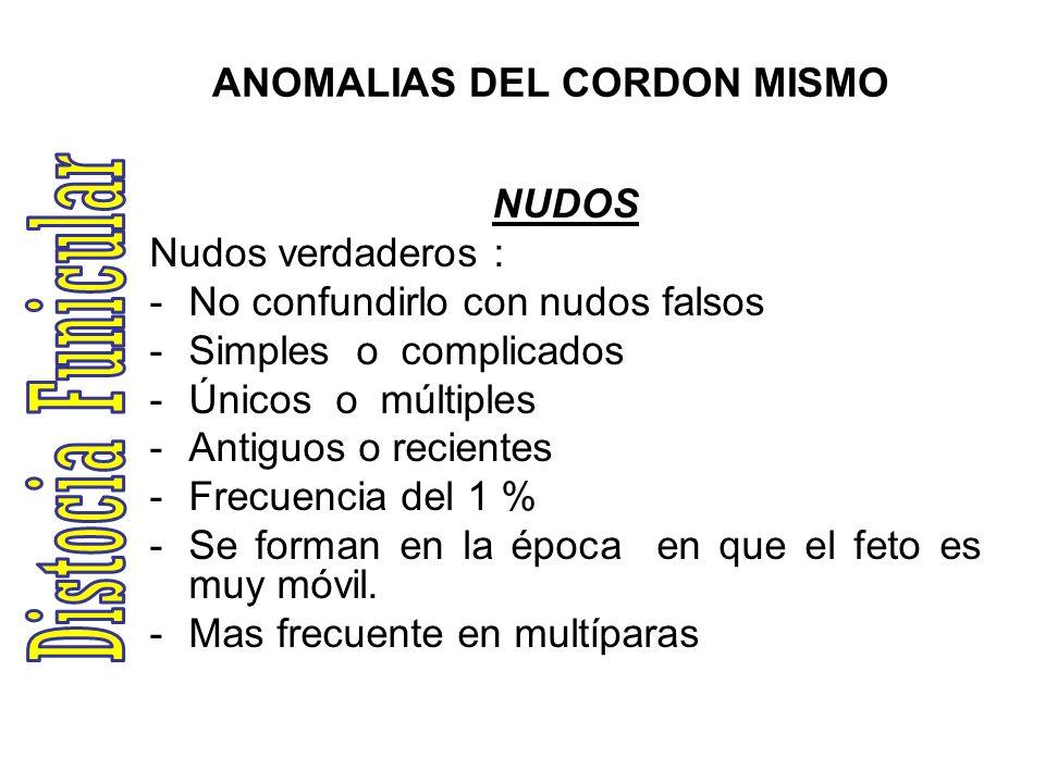 ANOMALIAS DEL CORDON MISMO NUDOS Nudos verdaderos : -No confundirlo con nudos falsos -Simples o complicados -Únicos o múltiples -Antiguos o recientes