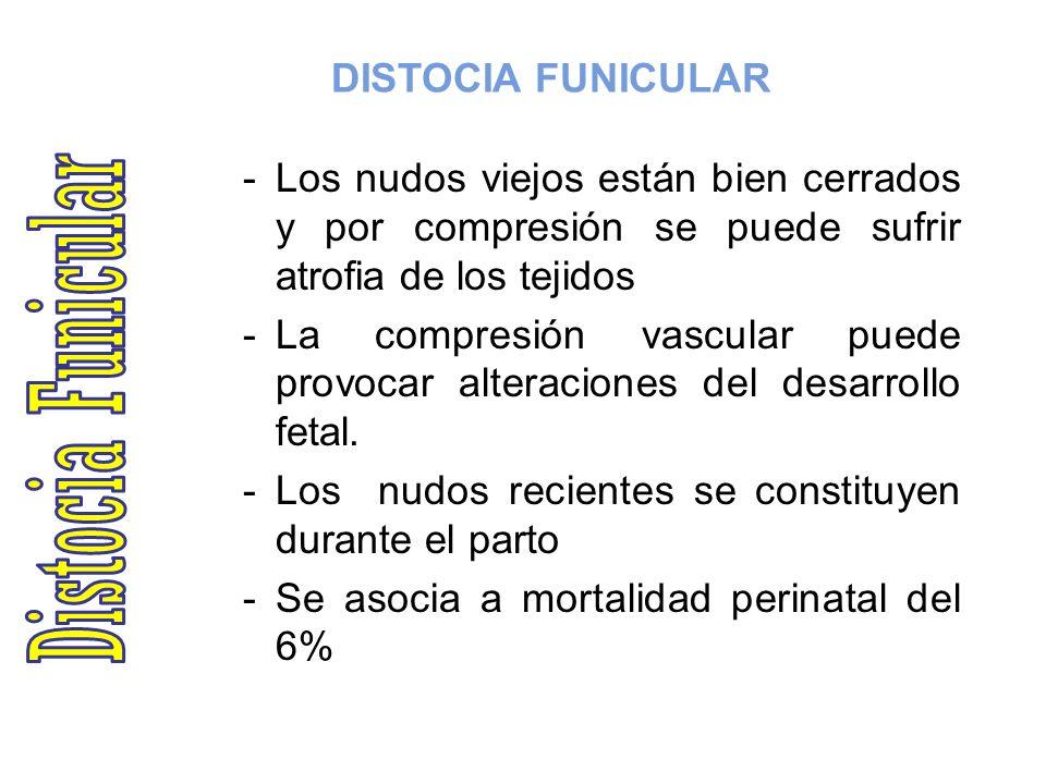 DISTOCIA FUNICULAR PROCIDENCIA DEL CORDON - FRECUENCIA: 0.4 % APROX.