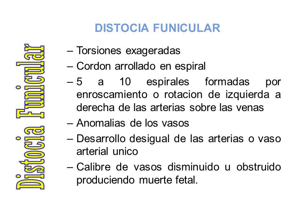 DISTOCIA FUNICULAR –Torsiones exageradas –Cordon arrollado en espiral –5 a 10 espirales formadas por enroscamiento o rotacion de izquierda a derecha d