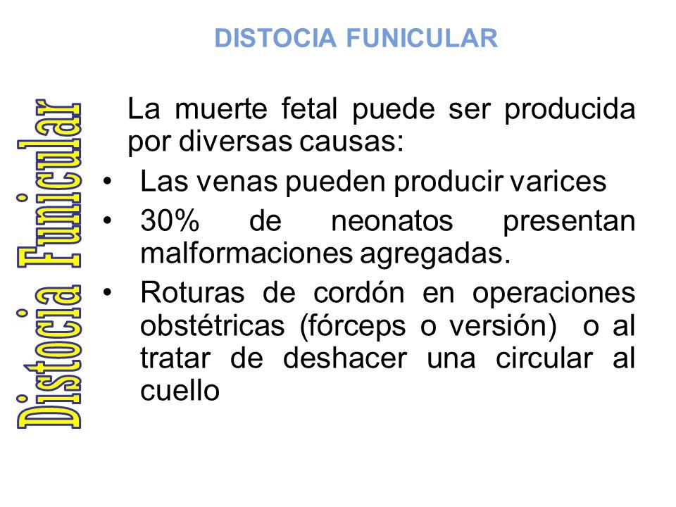 DISTOCIA FUNICULAR La muerte fetal puede ser producida por diversas causas: Las venas pueden producir varices 30% de neonatos presentan malformaciones