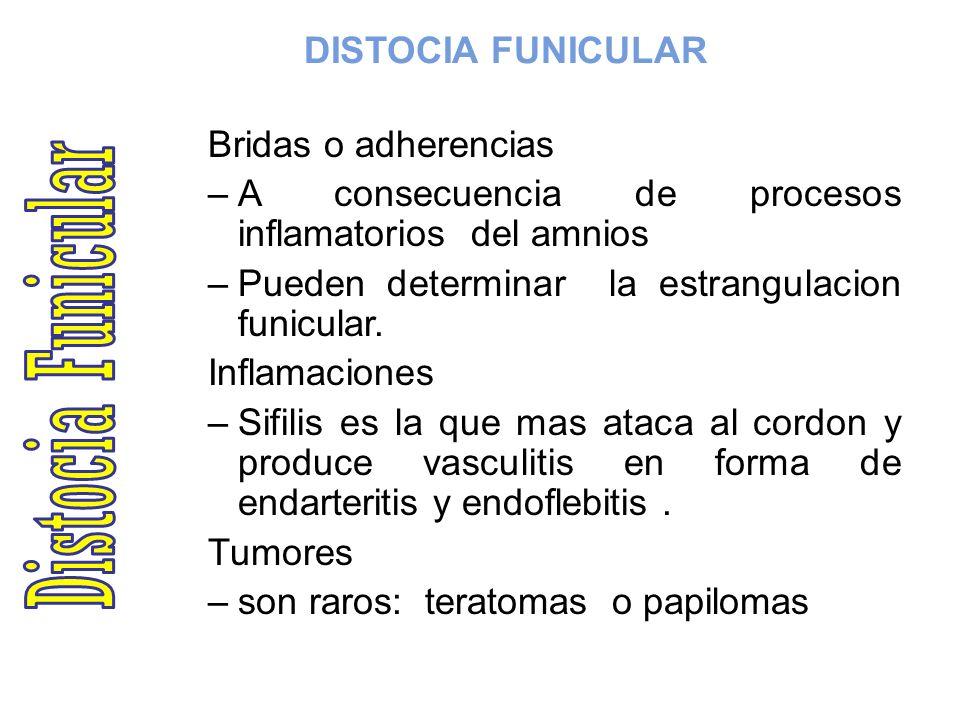 DISTOCIA FUNICULAR Bridas o adherencias –A consecuencia de procesos inflamatorios del amnios –Pueden determinar la estrangulacion funicular. Inflamaci