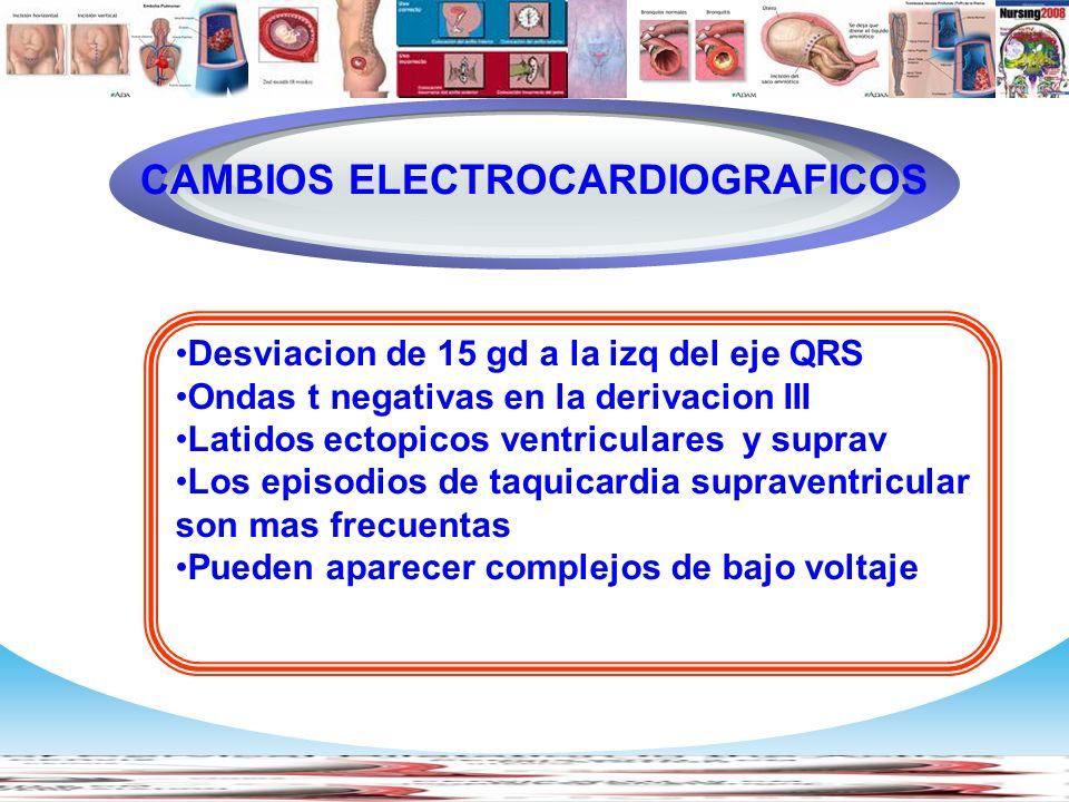 www.themegallery.com Company Logo Desviacion de 15 gd a la izq del eje QRS Ondas t negativas en la derivacion III Latidos ectopicos ventriculares y su