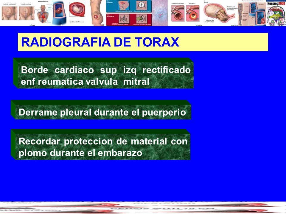 RADIOGRAFIA DE TORAX Borde cardiaco sup izq rectificado enf reumatica valvula mitral Recordar proteccion de material con plomo durante el embarazo Der