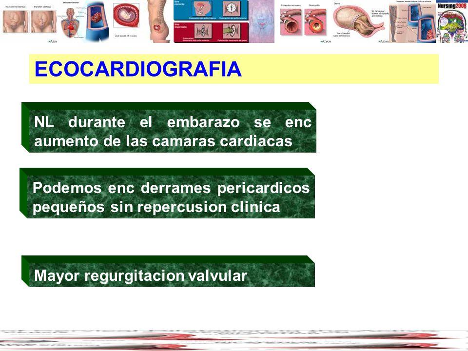 ECOCARDIOGRAFIA NL durante el embarazo se enc aumento de las camaras cardiacas Mayor regurgitacion valvular Podemos enc derrames pericardicos pequeños