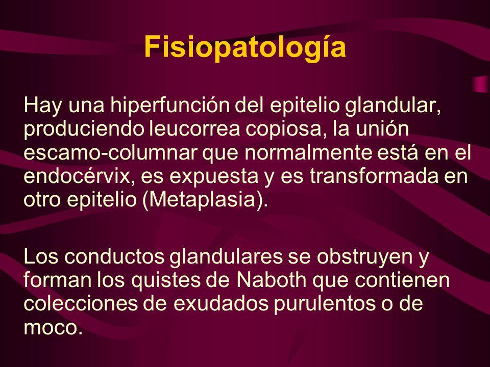 Fisiopatología Hay una hiperfunción del epitelio glandular, produciendo leucorrea copiosa, la unión escamo-columnar que normalmente está en el endocér