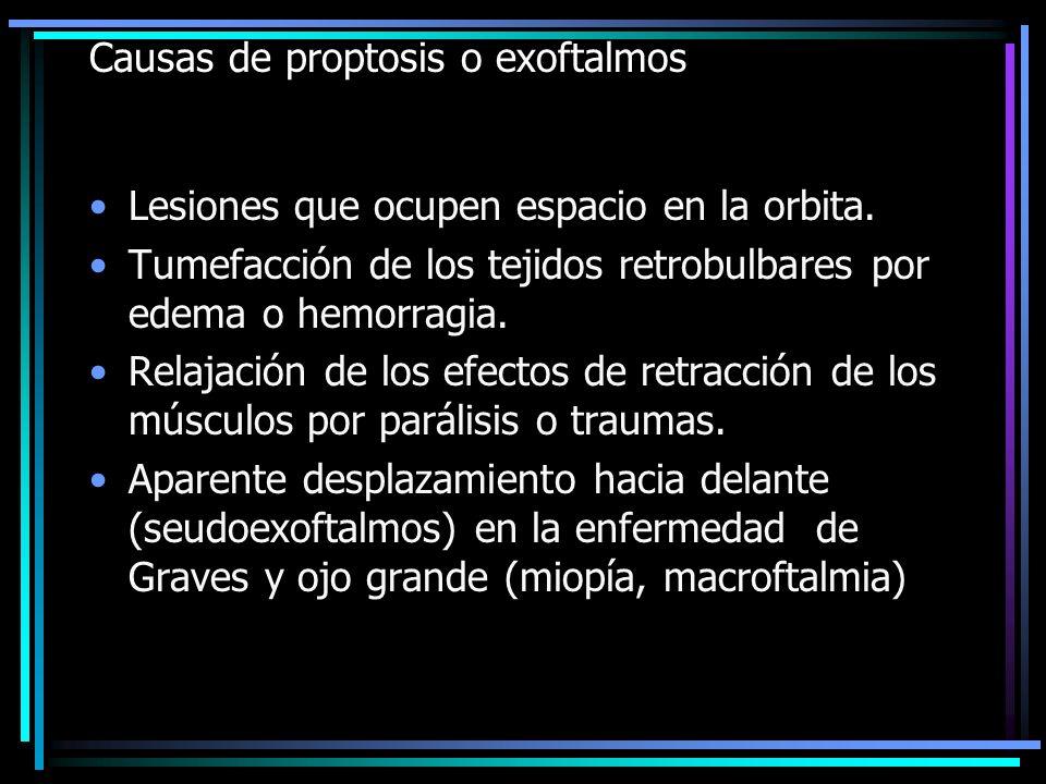 Causas de proptosis o exoftalmos Lesiones que ocupen espacio en la orbita. Tumefacción de los tejidos retrobulbares por edema o hemorragia. Relajación