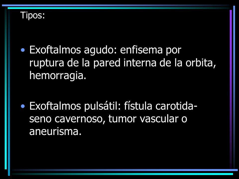 Tipos: Exoftalmos agudo: enfisema por ruptura de la pared interna de la orbita, hemorragia. Exoftalmos pulsátil: fístula carotida- seno cavernoso, tum