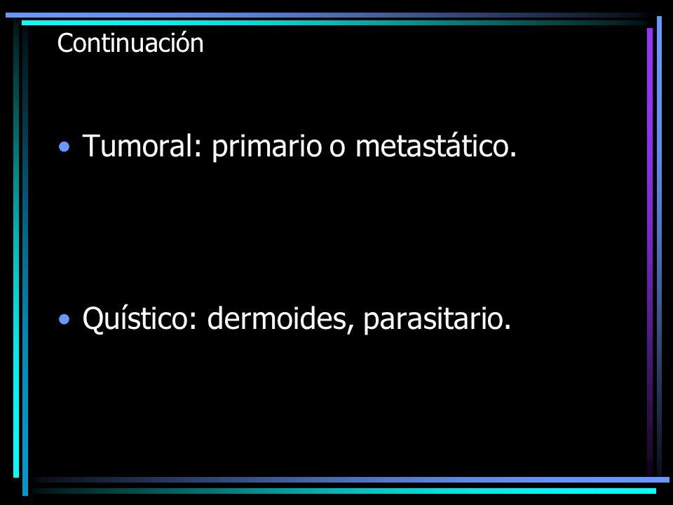 Continuación Tumoral: primario o metastático. Quístico: dermoides, parasitario.