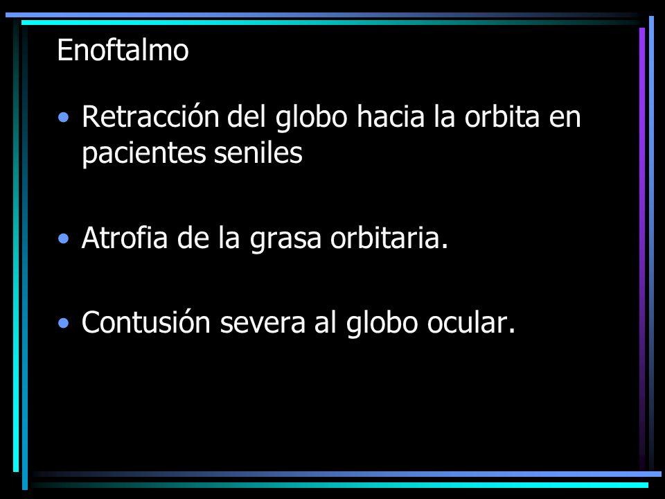 Enoftalmo Retracción del globo hacia la orbita en pacientes seniles Atrofia de la grasa orbitaria. Contusión severa al globo ocular.
