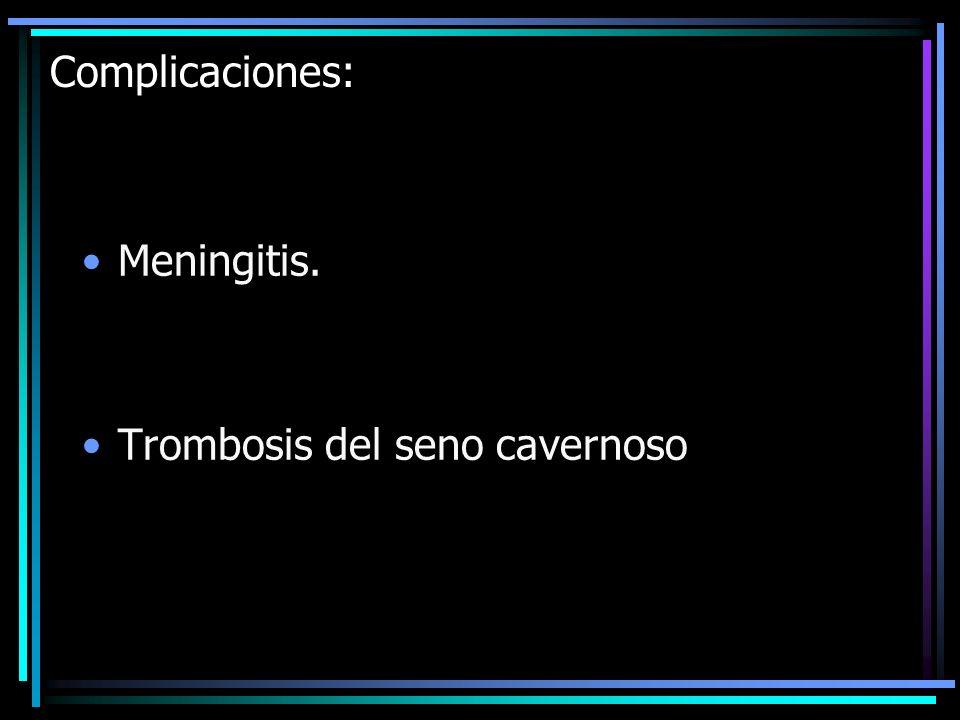 Complicaciones: Meningitis. Trombosis del seno cavernoso
