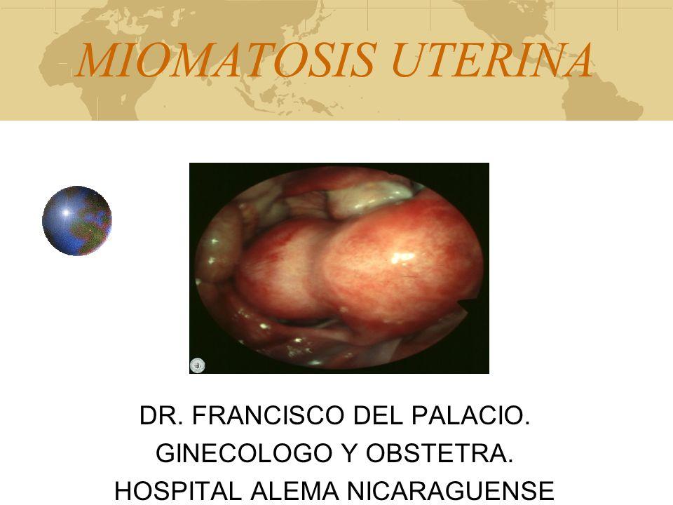 MIOMATOSIS UTERINA DR. FRANCISCO DEL PALACIO. GINECOLOGO Y OBSTETRA. HOSPITAL ALEMA NICARAGUENSE