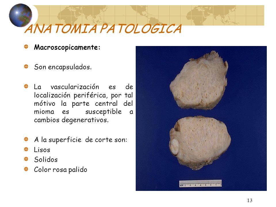 AnatomíaPatológica: Macroscópico: Unicas o múltiples de tamaño variable, redondeados o esféricos y de consistencia dura, están separados del miometrio