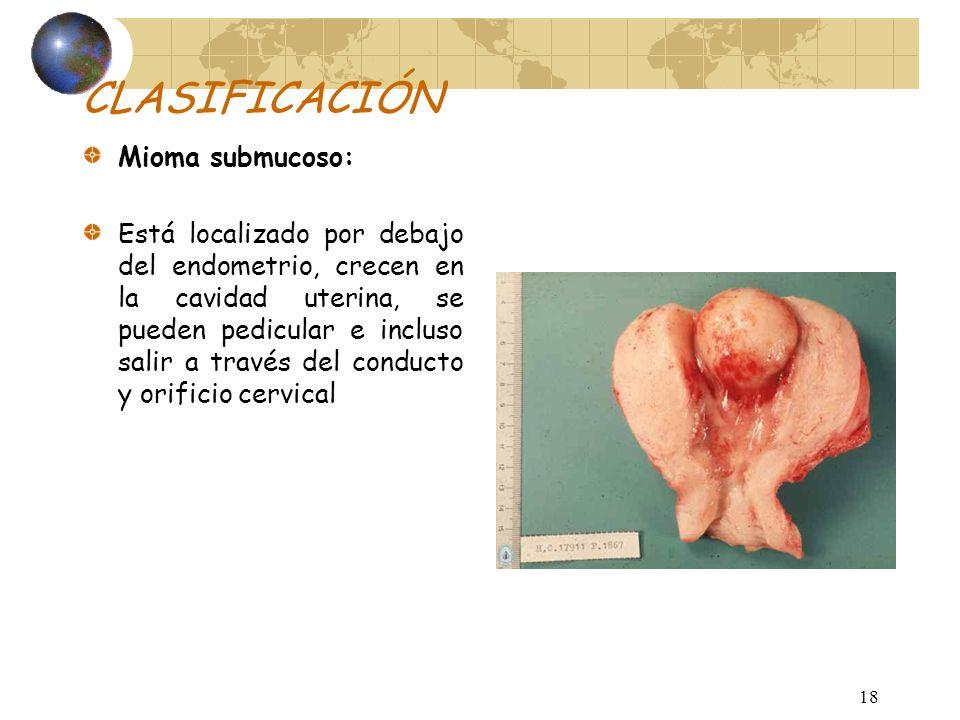 17 CLASIFICACIÓN Miomas subserosos: Nacen por debajo de la cubierta peritoneal y protuyen a la cavidad abdominal. Tienden a ser pediculados, alcanzand