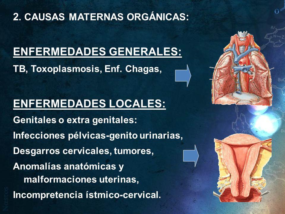 2. CAUSAS MATERNAS ORGÁNICAS : ENFERMEDADES GENERALES: TB, Toxoplasmosis, Enf. Chagas, ENFERMEDADES LOCALES: Genitales o extra genitales: Infecciones