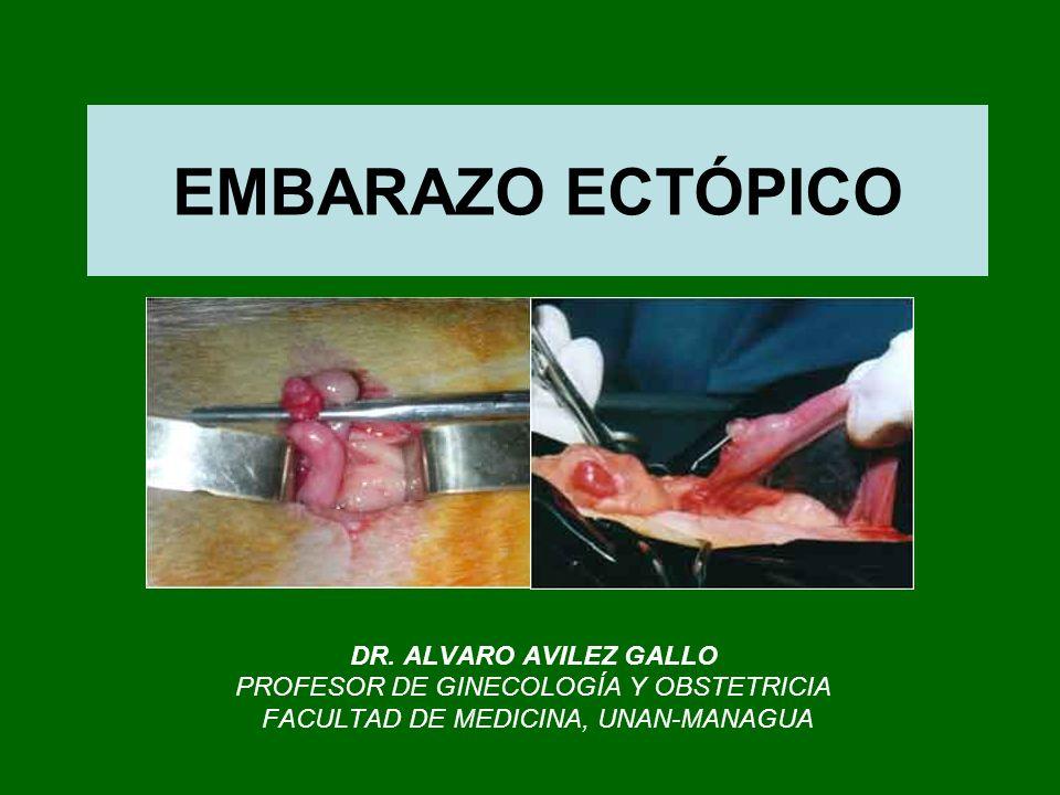 EMBARAZO ECTÓPICO DR. ALVARO AVILEZ GALLO PROFESOR DE GINECOLOGÍA Y OBSTETRICIA FACULTAD DE MEDICINA, UNAN-MANAGUA