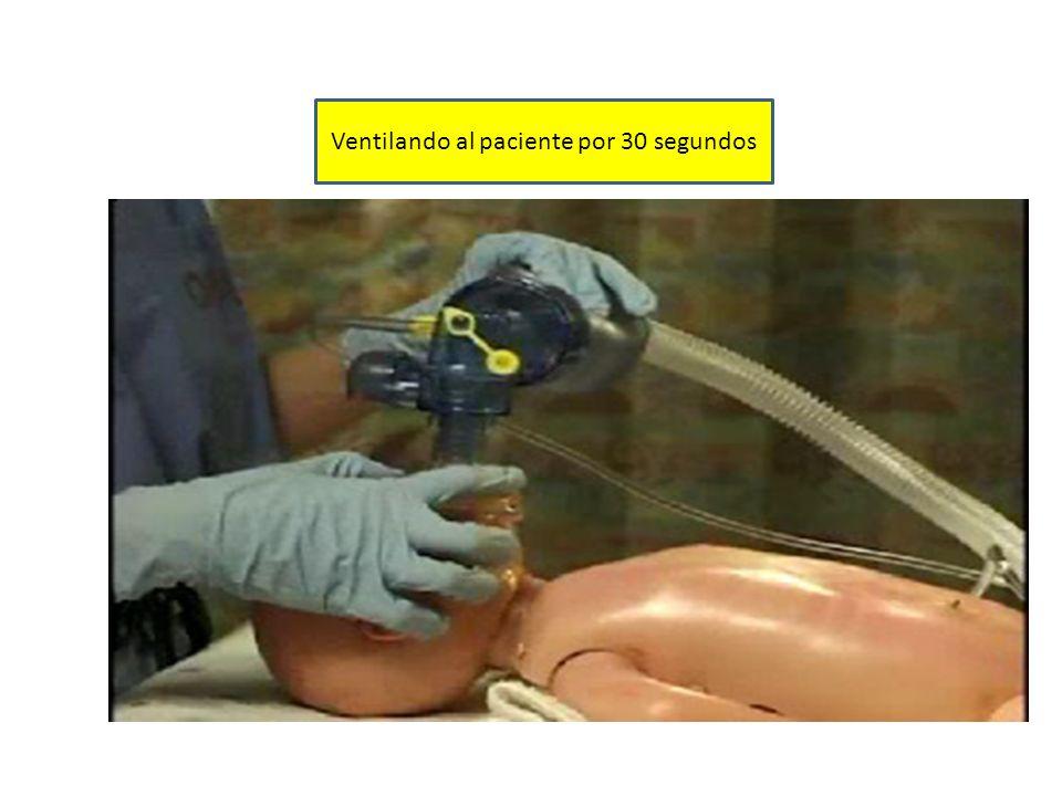 Ventilando al paciente por 30 segundos