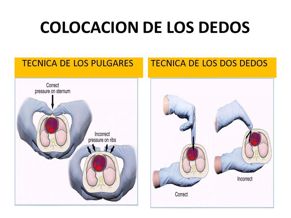 TECNICA DE LOS PULGARESTECNICA DE LOS DOS DEDOS COLOCACION DE LOS DEDOS