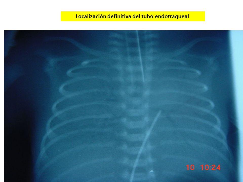 Localización definitiva del tubo endotraqueal
